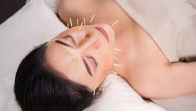 Photo of Is Acupuncture Good For Weight Loss?