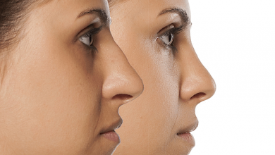 Photo of Improve the shape of your nose- rhinoplasty